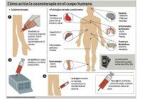 Algunas enfermedades o patologías en que se aplica OZONO con éxito