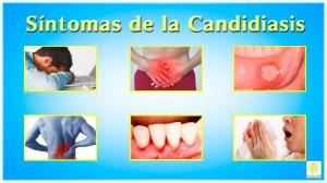 candidiasis oral recurrente causas