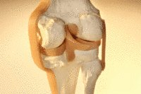 Rodilla artrosis